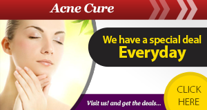 Why Does ClearPores Beat Out Other Acne Creams on the Market?