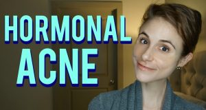How to Treat Acne? baby acne treatment: Acne Treatments That Work