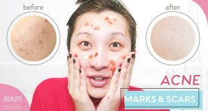 What Cause Acne on Cheeks? adult acne causes: 17 Best Acne Spot Treatments of 2020