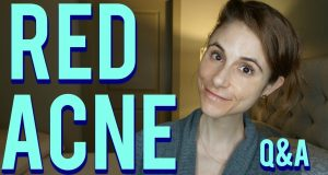 How Do You Get Rid of Acne Scars Naturally? does spironolactone make you gain weight: The Way To Help Get Rid Of Acne