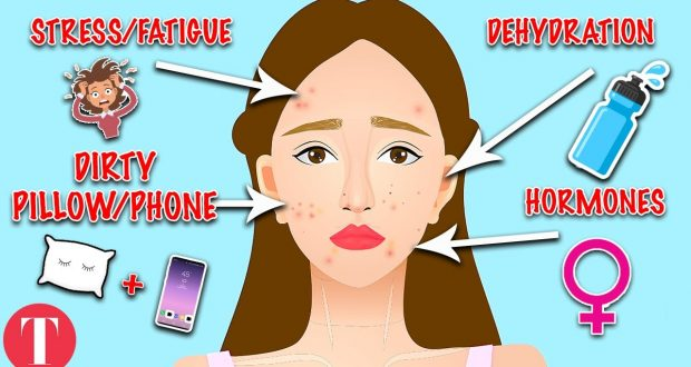 How to Get Rid of Acne Caused by B12? how long does it ...